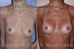 breast-augmentation-ba-1