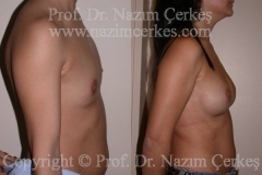 breast-augmentation-ba-13