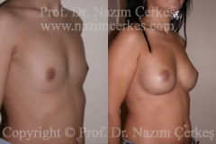 breast-augmentation-ba-14