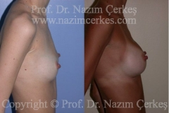 breast-augmentation-ba-2