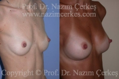 breast-augmentation-ba-3