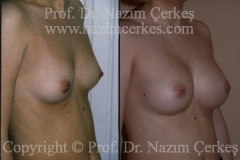 breast-augmentation-ba-5