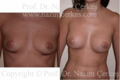 breast-augmentation-ba-6