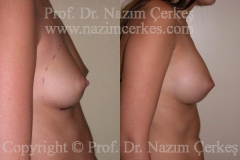 breast-augmentation-ba-7
