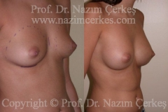breast-augmentation-ba-8