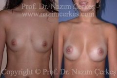 breast-augmentation-ba-9