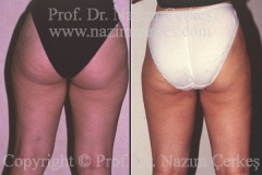 liposuction-ba-10