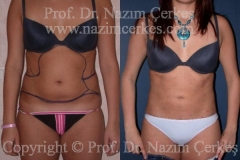 liposuction-ba-11