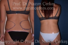 liposuction-ba-12