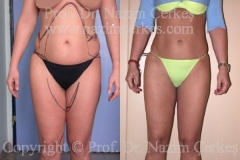 liposuction-ba-4