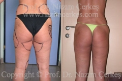 liposuction-ba-5